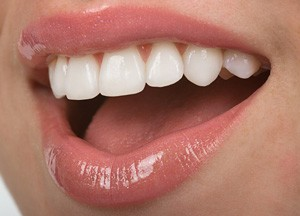 Porcelain-Veneers-web